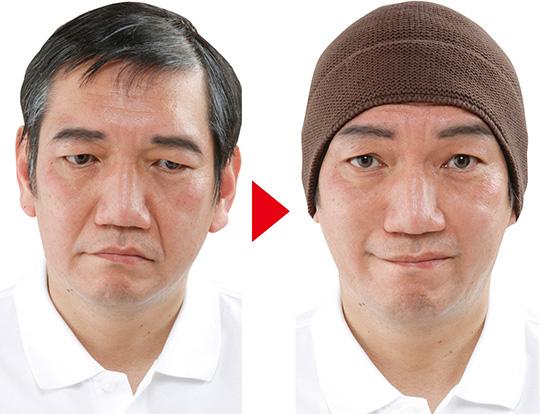 danrich-facelift-hat-02